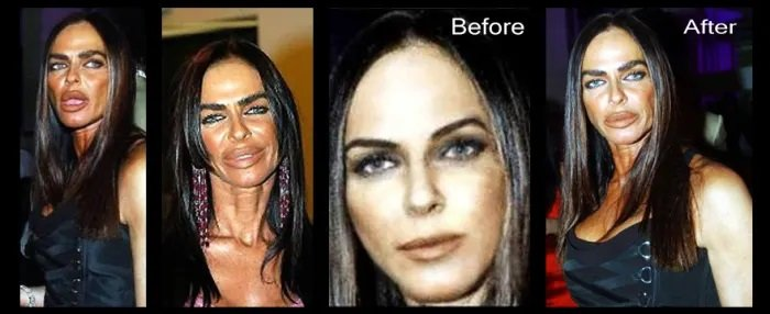 Michaela Romanini: Before & After Plastic Surgery